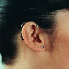 Female ear in profile. Tinnitus may be a symptom of hearing loss.
