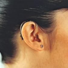 Female uses hearing aid after surgery for otosclerosis.