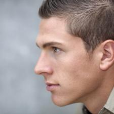 Adorable man in profile showing ear treated for otosclerosis.