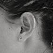 ear,black,white,risk,hearing,loss